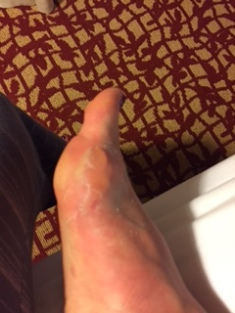 Post Race Blisters